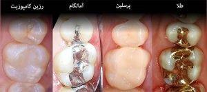 هرآنچه باید در مورد پر کردن دندان بدانید