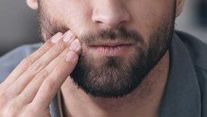آبسه دندان چیست؟ و راه های درمان آن چگونه است؟