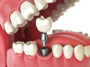ایمپلنت تک دندان چیست و چه مزایایی دارد؟