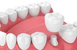 تاج-گذاشتن-دندان2