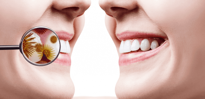 روش های درمان عفونت دندان