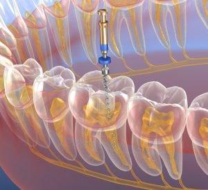 عصب کِشی یا عصب کُشی دندان