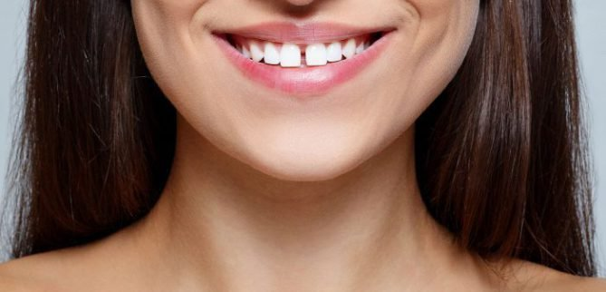 علت فاصله افتادن بین دندانها چیست؟