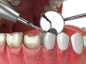 آیا جرم گیری باعث سفید شدن دندان می شود؟