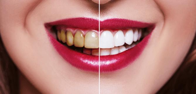 مواردی که باعث تغییر رنگ دندان ها می شود