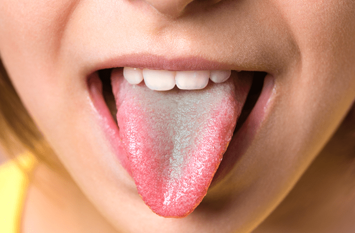 علت سبز شدن زبان
