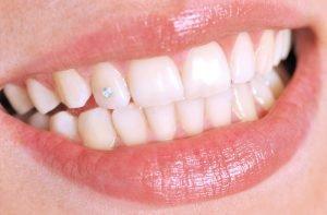 عوارض کاشت نگین بر روی دندان